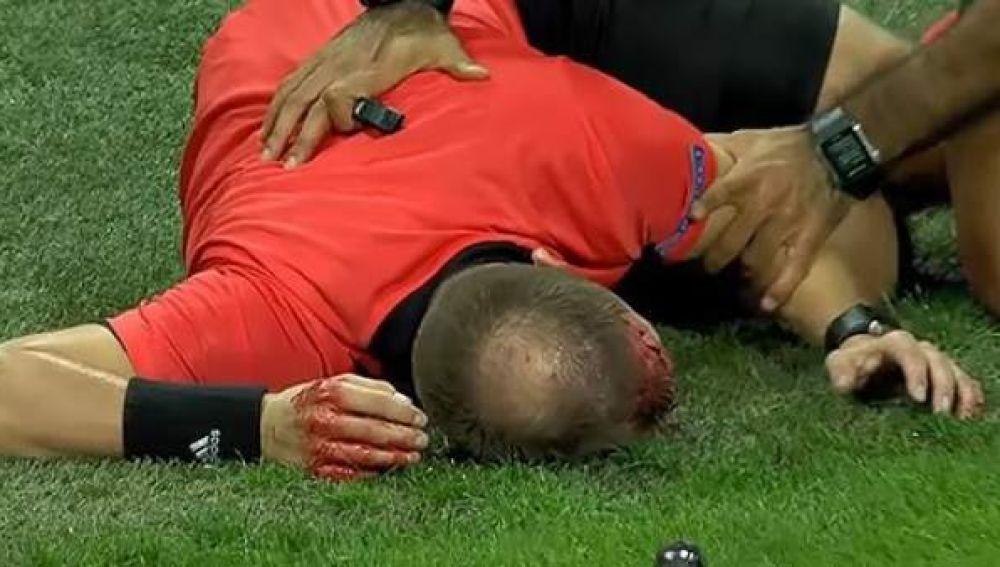 Terrible agresión en la Europa League
