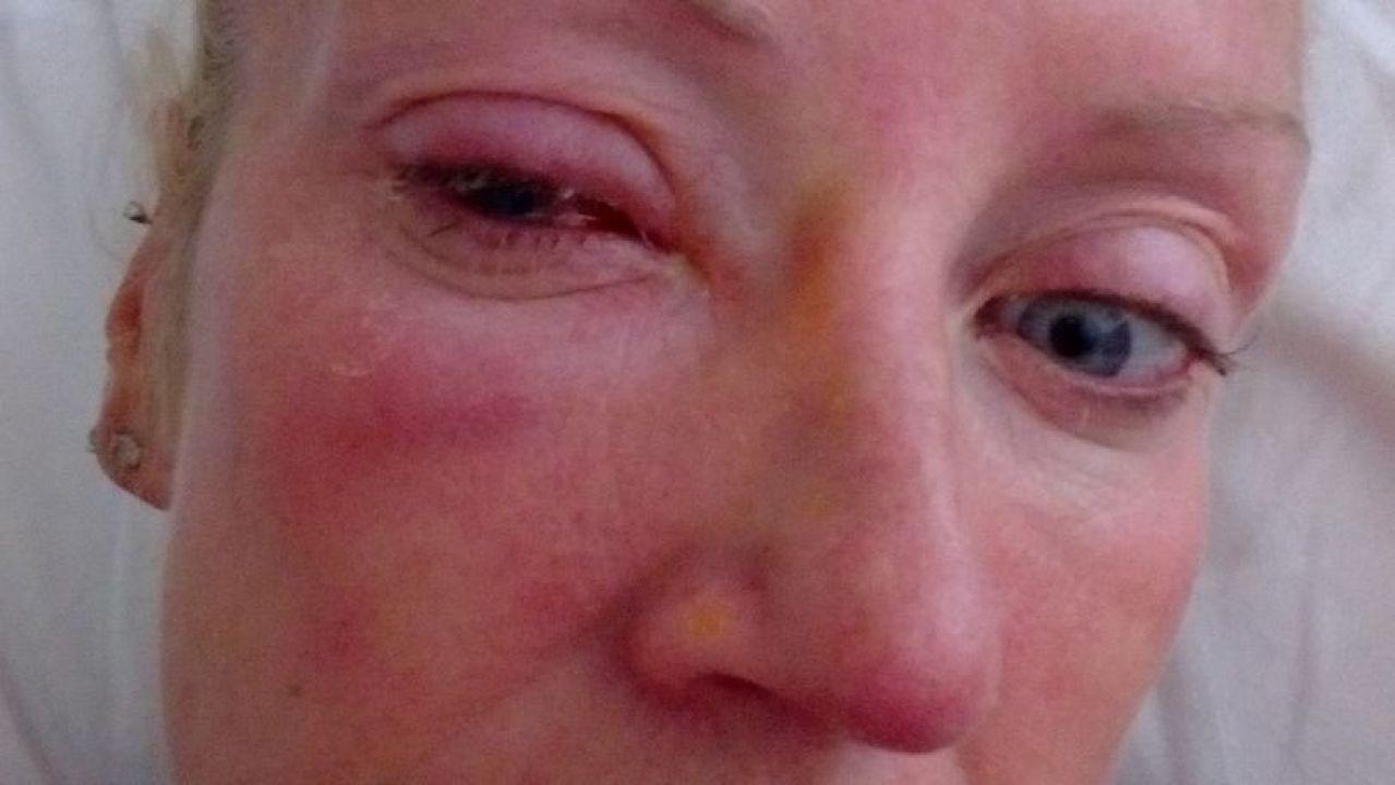 229bfb8428e72 Una mujer se queda ciega después de que un parásito se pegue a su lentilla  y le devore la córnea