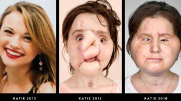 Trasplante de cara de Katie Stubblefield