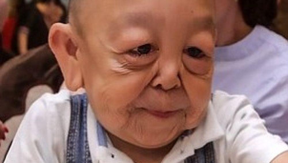 Yernar Alibekov, el niño con cara de anciano