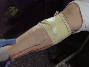 Corte en la pierna