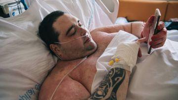 Imagen de Teófilo Rodríguez, el joven con obesidad mórbida que pesa 385 kilos