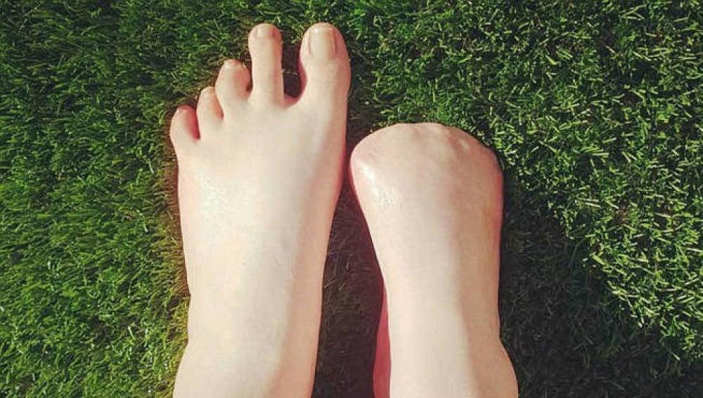 Pies de Victoria Curthoys, la australiana que perdió sus dedos