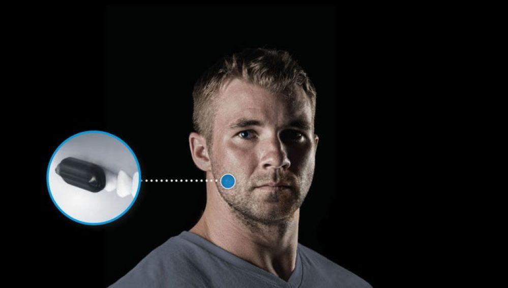 Para escuchar y transmitir mensajes, Molar Mic utiliza un micrófono y un altavoz de conducción ósea colocados en los dientes