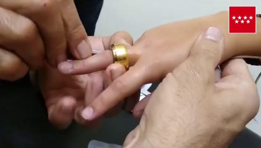 Los Bomberos extraen un anillo encajado en el dedo de un niño