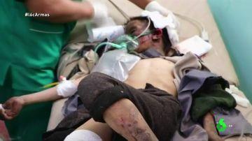 Imagen de un niño hospitalizado en Yemen
