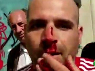 """El testimonio del policía nacional agredido en Barcelona: """"Me pegaron entre cuatro o cinco. Veía que me mataban allí"""""""