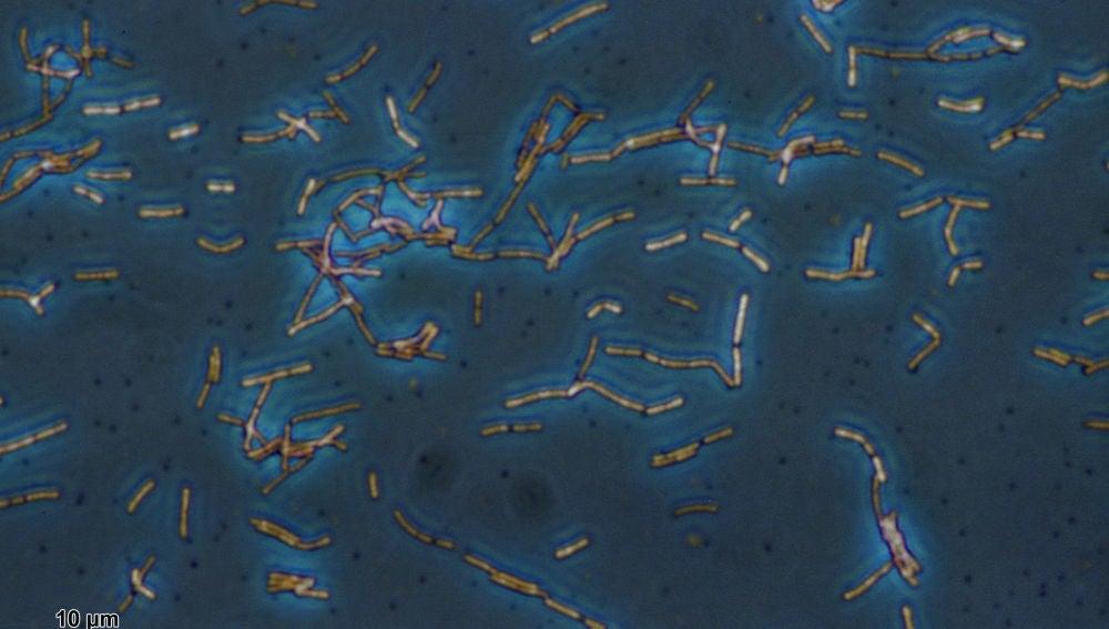 El Lactobacillus acidophilus es una de las muchas bacterias beneficiosas para nuestro cuerpo