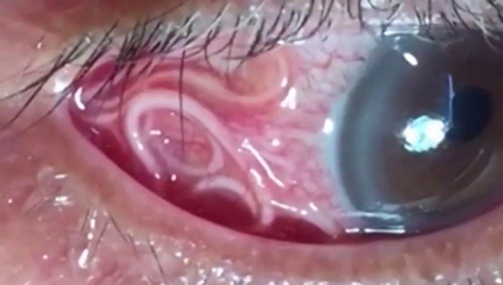 ver gusanos en los ojos