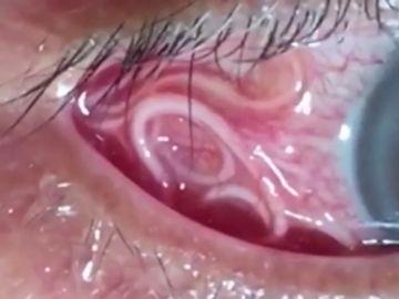 Las angustiosas imágenes que muestran la extracción de un gusano de 15 centímetros del ojo de un hombre
