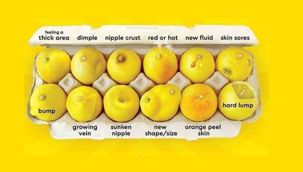 'Conoce tus limones': la guía para identificar las 12 señales visibles del cáncer de mama