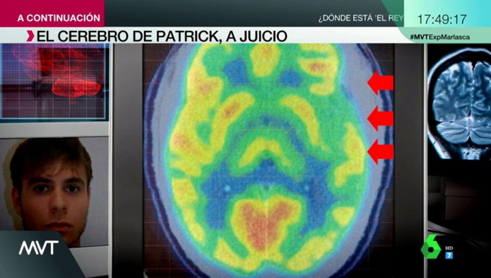 Ira incontrolable, alteraciones neurológicas y rasgos psicopáticos: así es el cerebro de Patrick Nogueira, según su defensa