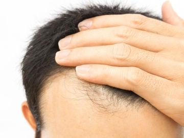Caída de pelo