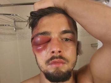 La lesión que obliga a retirarse del mundial superligero a Anthony Yigit