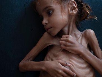 Muere la niña de siete años que puso rostro al drama de la guerra de Yemen