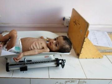 Un niño desnutrido en Yemen