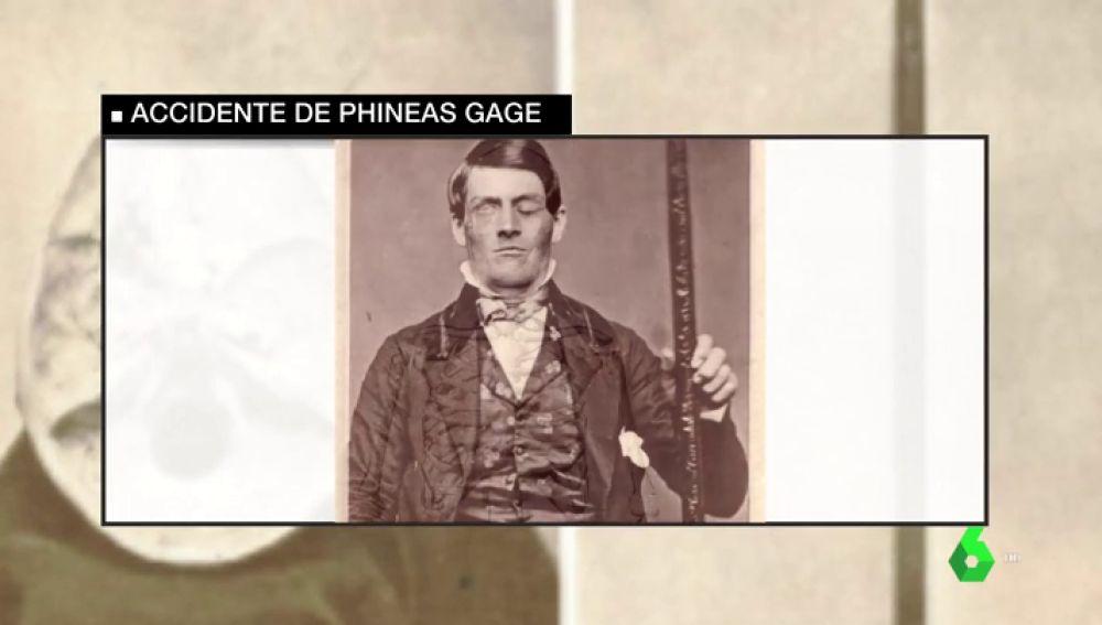 El caso de Phineas Gage que se compara con Patrick Nogueira: un daño en su cerebro cambió radicalmente su conducta