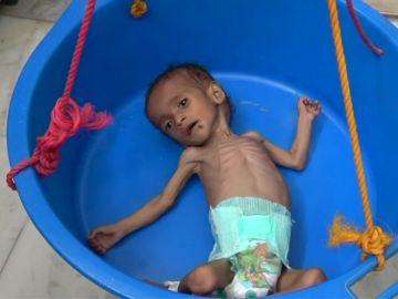 La hambruna en Yemen, causante de la muerte de 85.000 niños