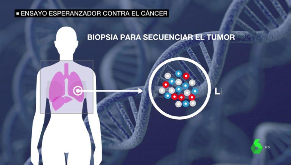 Llega a España un ensayo esperanzador contra el cáncer que salvó la vida a una mujer con metástasis en EEUU