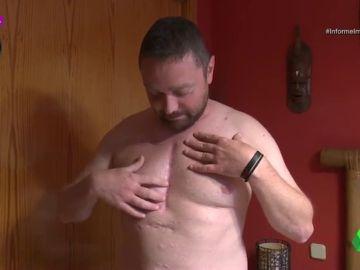 Un reemplazo de cadera que acabó en trasplante de corazón: el implante que envenenó durante dos años a César