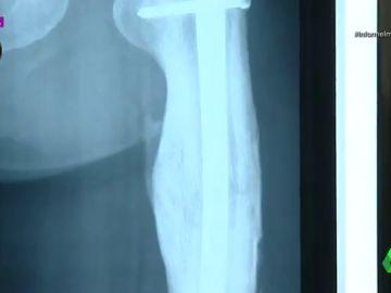 Imagen de la radiografía de un implante sanitario