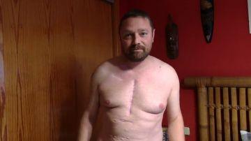 El calvario de César por una prótesis defectuosa: su trasplante de cadera acabó en trasplante de corazón