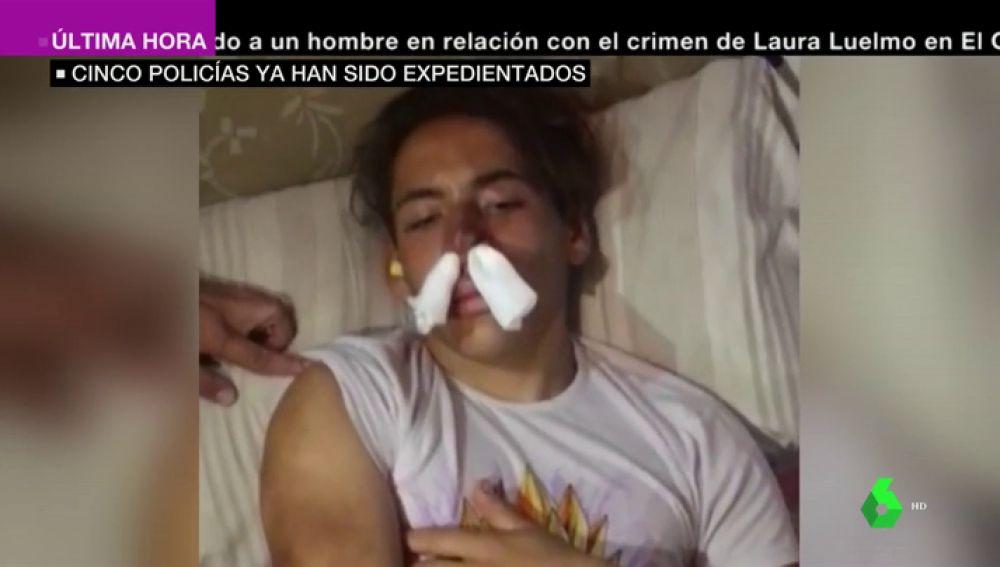 Duras imágenes: varios policías dan una paliza a un joven de 17 años de Melilla al confundirle con un MENA