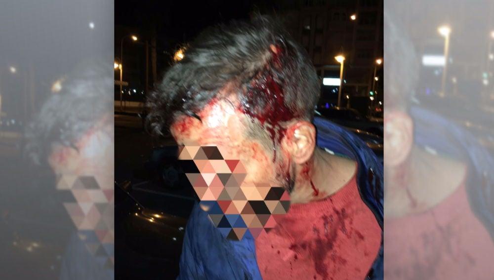 Policía herido en Melilla