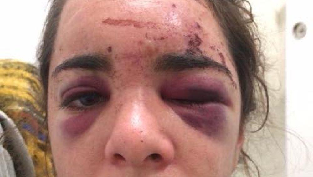 Andrea fue brutalmente apaleada y violada