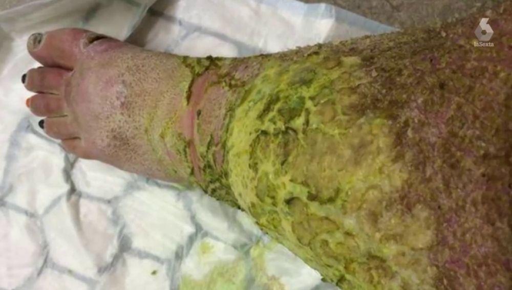 Amputan las piernas a una mujer después de sufrir una brutal infección tras caerse por las escaleras
