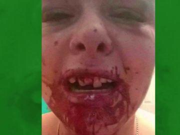 Imagen del rostro desfigurado de una joven después de que su novio le pegase una paliza