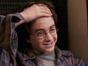 Daniel Radcliffe como Harry Potter enseña su cicatriz