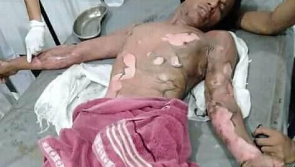 Una mujer quema vivo a su marido porque no le daba la contraseña del móvil