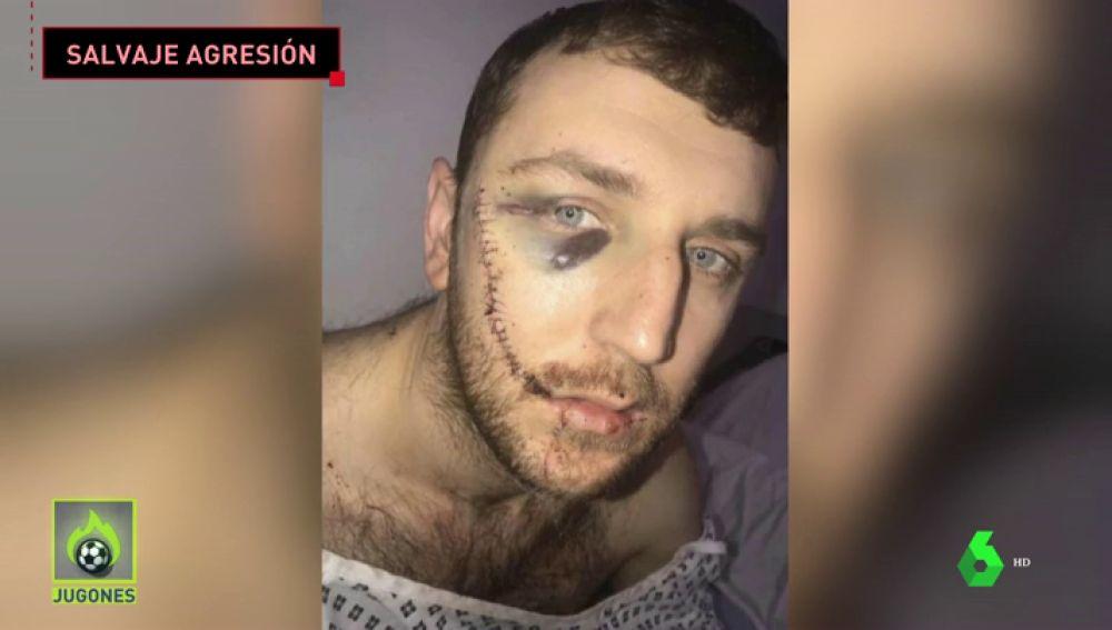 """Las terribles heridas de un seguidor del Everton al que rajaron la cara en una pelea entre hooligans: """"No me puedo mirar en el espejo"""""""
