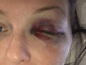 Leanne Barrett, víctima de violencia machista