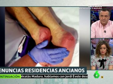 Heridos, desnutridos y cubiertos de orina: los maltratos a ancianos en una residencia de Madrid