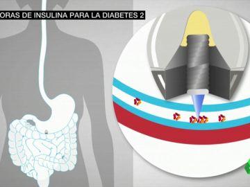 Una píldora de insulina podría acabar con las inyecciones en la diabetes tipo 2
