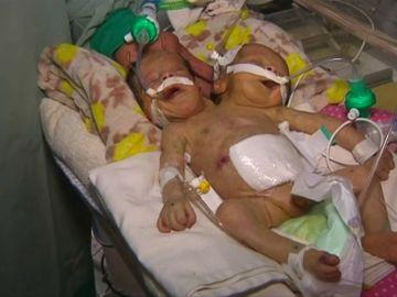 Los dos siameses de Yemen durante su estancia en el hospital
