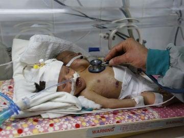 Los siameses de Yemen durante su estancia en el hospital