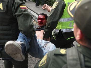 Un herido es socorrido por miembros de la Policía de Colombia