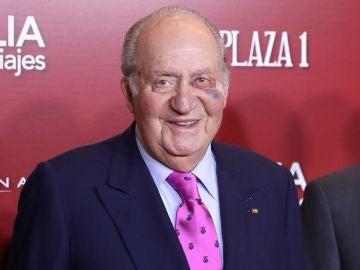 El Rey emérito Juan Carlos con el ojo morado