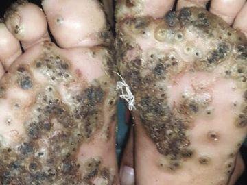 Imagen de los pies de la paciente con tungiasis.