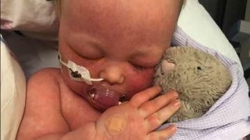 Una madre comparte fotos de su bebe con sarampión para concienciar a los 'antivacunas'
