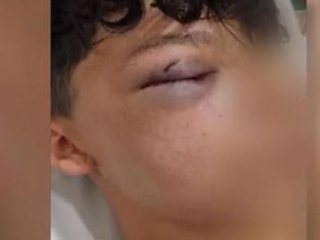 Brutal agresión a un menor en un barrio de Madrid