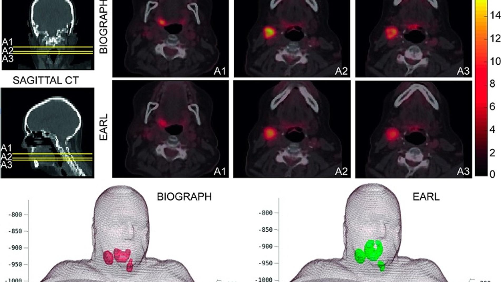 La radioterapia a medida mejorara los tratamientos contra el cancer