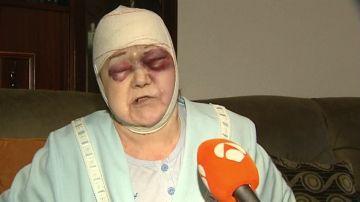 """Propinan una brutal paliza a una anciana de 91 años en L'Hospitalet: """"Me rajó la cabeza"""""""