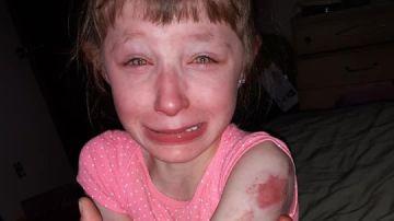 Imagen de la niña agredida