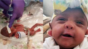 Saybie, la bebé más pequeña del mundo con vida