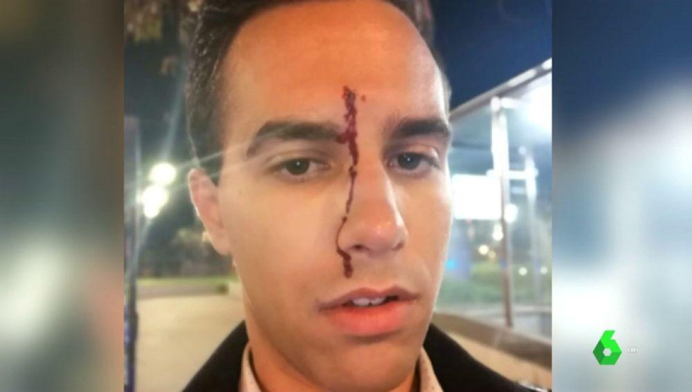 Dos jóvenes heridos después de sufrir un ataque homófobo en Barcelona