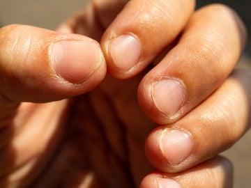Morderte las uñas puede poner en peligro tu salud